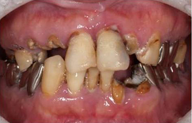 虫歯 放置 どうなる